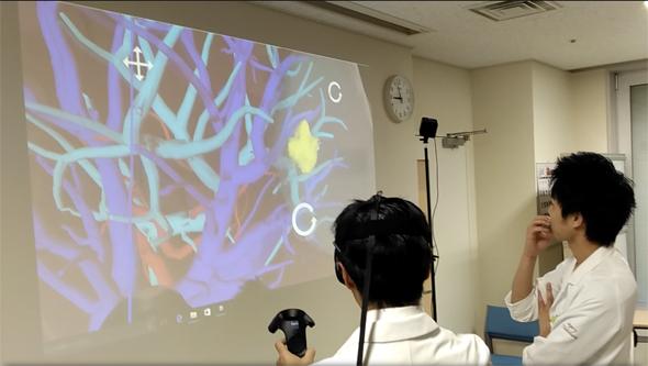 図1 3D腹腔鏡のような立体感があり、しかも直観的に操作できる
