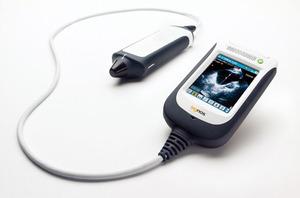 写真2 ポータブルタイプの超音波診断装置(提供:米SignosticsMedical社)