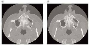 写真1 CT画像の比較