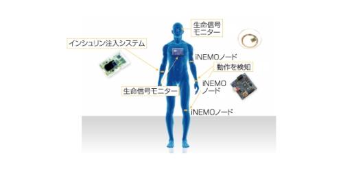図1 STMicroelectronicsのサイボーグ技術