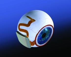 図2 ボストン網膜移植プロジェクトの開発した人工網膜