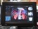 画像診断で高まる3D表示へのニーズ、3Dプリンタとの連携も