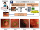 AIで大腸がんの予兆を検知 国立がんセンターとNECが開発
