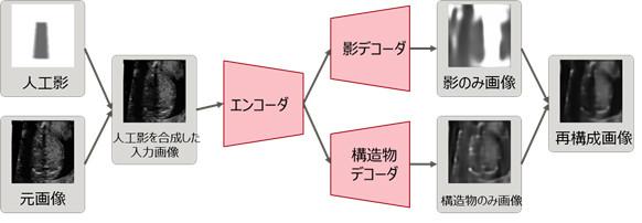 ラベルなしデータで超音波画像の影を学習するモデル