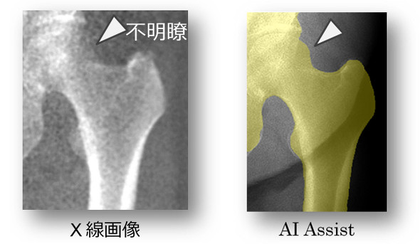 骨密度測定をAIで高速化する