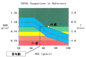 <strong>図1</strong> 加齢に伴う骨密度の変化と骨年齢の評価(68歳女性の例)