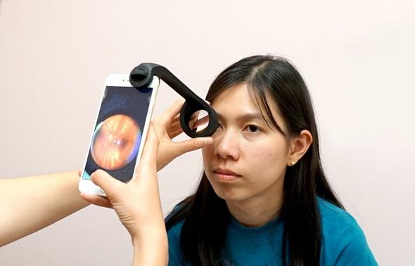 患者の眼をiPhoneで診察可能にするアイデア