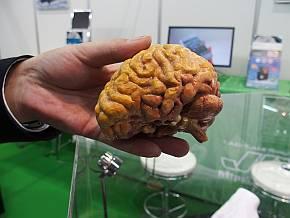 「Mcor IRIS」の出力例。脳のモデル