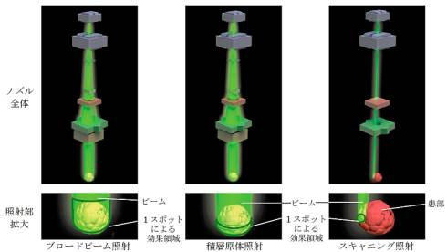 多機能照射ノズルが対応した3種類の粒子線ビーム照射法