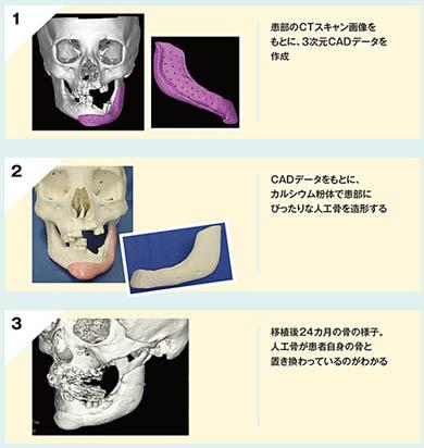 3Dプリント人工骨の仕組み