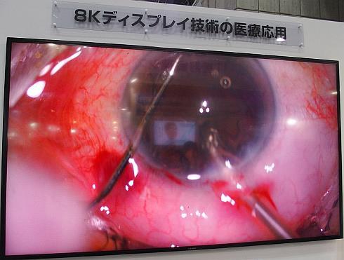 85インチの8Kディスプレイに表示した眼球の顕微鏡手術映像
