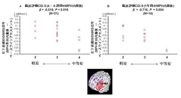 photo ADHDの薬物治療効果を光トポグラフィーで予測する可能性を示唆 東京大学は、小児の注