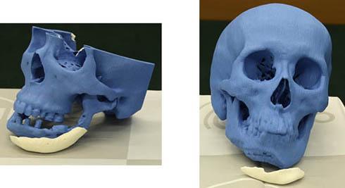 NEDOプロジェクトで開発されたカスタムメイド人工骨CTボーン