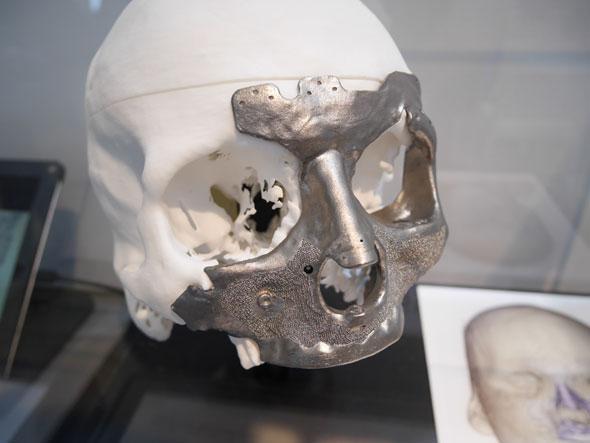 ジェネレーティブデザイン設計を用いて作られた人口骨