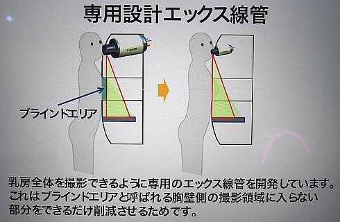 乳房の付け根からきちんとCT撮影を行うための工夫