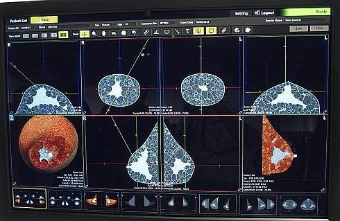 「Breast CT」で撮影した乳房のCT画像のイメージ