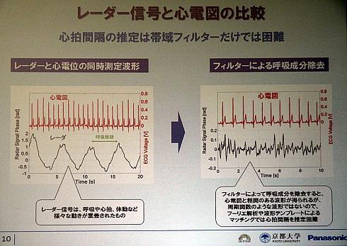 ミリ波UWBレーダーによる人体計測の結果と心電図との比較