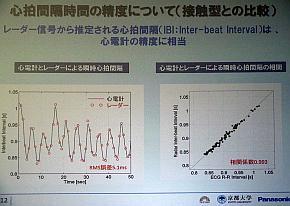 心拍間隔と心電図の相関
