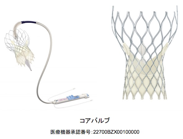 http://image.itmedia.co.jp/mn/articles/1602/03/mn_medical_16012103a.jpg