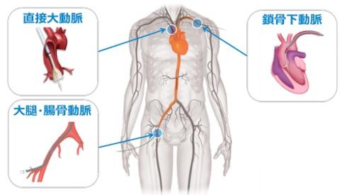 http://image.itmedia.co.jp/mn/articles/1602/03/mn_medical_16012103b.jpg