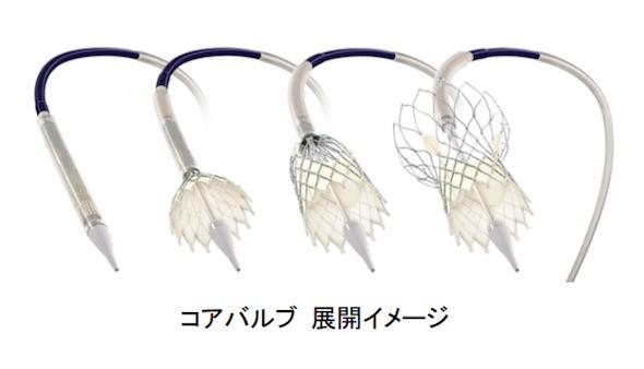 http://image.itmedia.co.jp/mn/articles/1602/03/mn_medical_16012103c.jpg