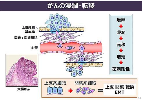 がんの浸潤と転移