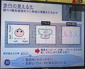 当初のAYUMI EYEは、理学療法士向けの「歩行の見える化」の手段として提供されていた