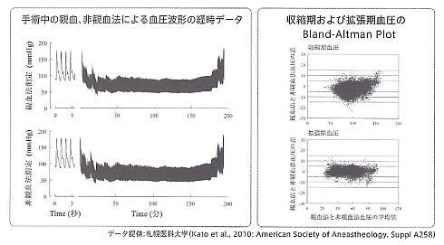 「viewphii CBP」(下)と観血式連続血圧計(上)の測定値の比較