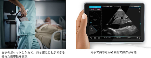 http://image.itmedia.co.jp/mn/articles/1604/27/mn_medical_16041403a.jpg