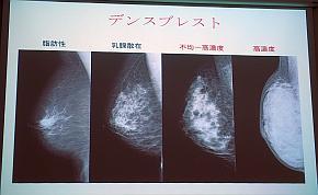 マンモグラフィーで見た乳腺濃度の違い