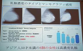 乳腺濃度のタイプとマンモグラフィー感度の関係