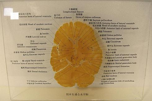 薄くスライスした大脳の包埋標本