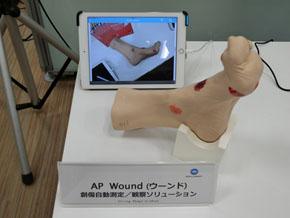 規制が厳しいシンガポールで、病院で実証実験を行いながら開発した創傷測定・観察ソリューション