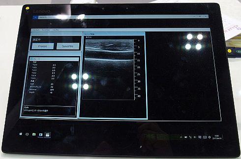 改良した「viewphii US」の超音波画像