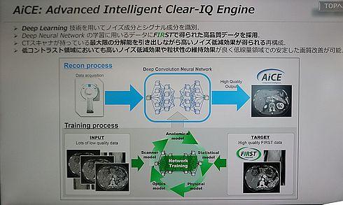 「AiCE」技術の概要