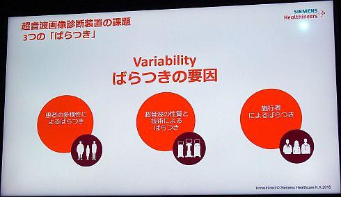 超音波画像診断装置における3つのばらつきの要因