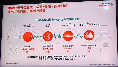 「BioAcoustic Technology」の概要