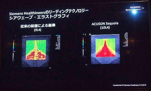 「ACUSON S3000」(左)と「ACUSON Sequoia」(右)のシアウェーブ画像の比較