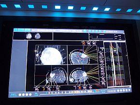 「OPeLiNK」でつながった医療機器の情報
