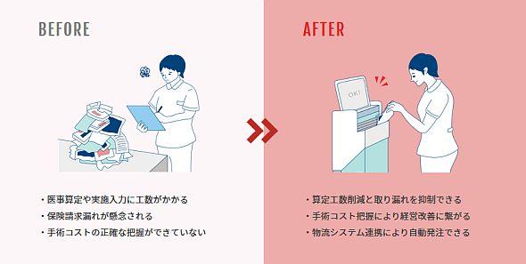 手術材料管理における「レコピック」の活用イメージ