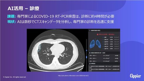 AIがCTスキャンデータを解析し、肺炎の可能性を数秒で診断する[クリックして拡大]出典:Appier