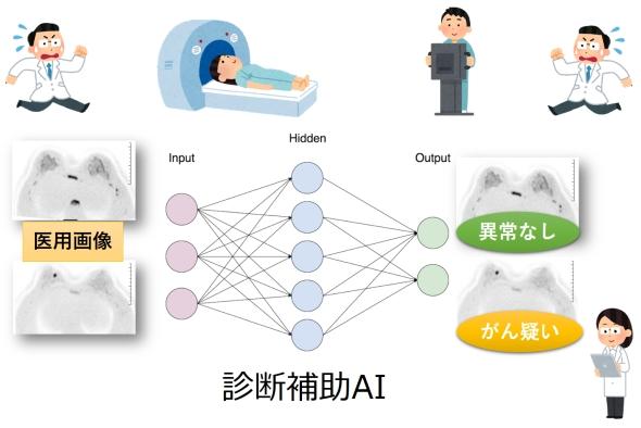 診断補助AIのイメージ
