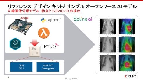 ザイリンクスとSpline.AI、AWSが共同開発した医療用X線画像分類用の深層学習モデルとレファレンスデザインキット