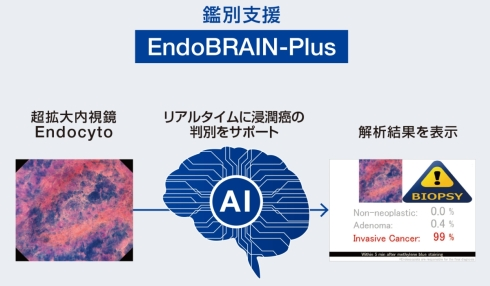 「EndoBRAIN-Plus」による診断の補助のイメージ