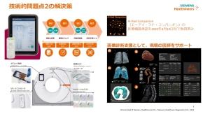 CT装置を車載するための解決策