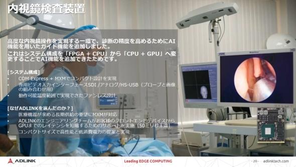 内視鏡検査装置へのADLINKソリューションの採用事例