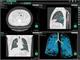 新型コロナウイルス肺炎の画像診断を支援するソフトウェアを発売
