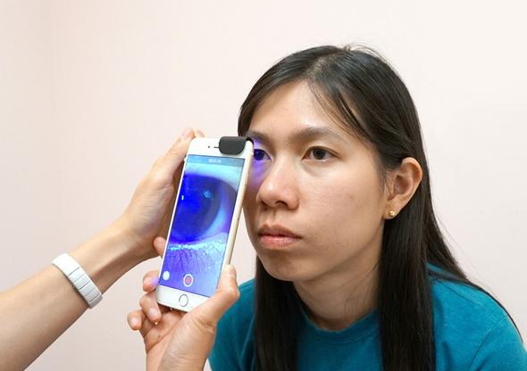 ビゾクリップを取り付けたiPhoneで眼の検査を行う