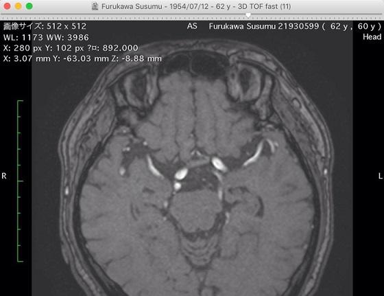 脳梗塞で倒れた古川享さんの頭の中はどうなっていたのか MRI画像をもと ...