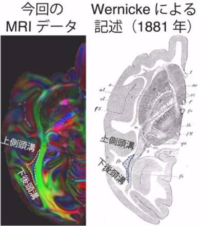 サルとヒト、視覚情報を伝える脳の線維束が類似